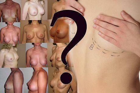 Medycyna estetyczna: jak bezpiecznie powi�kszy� piersi?