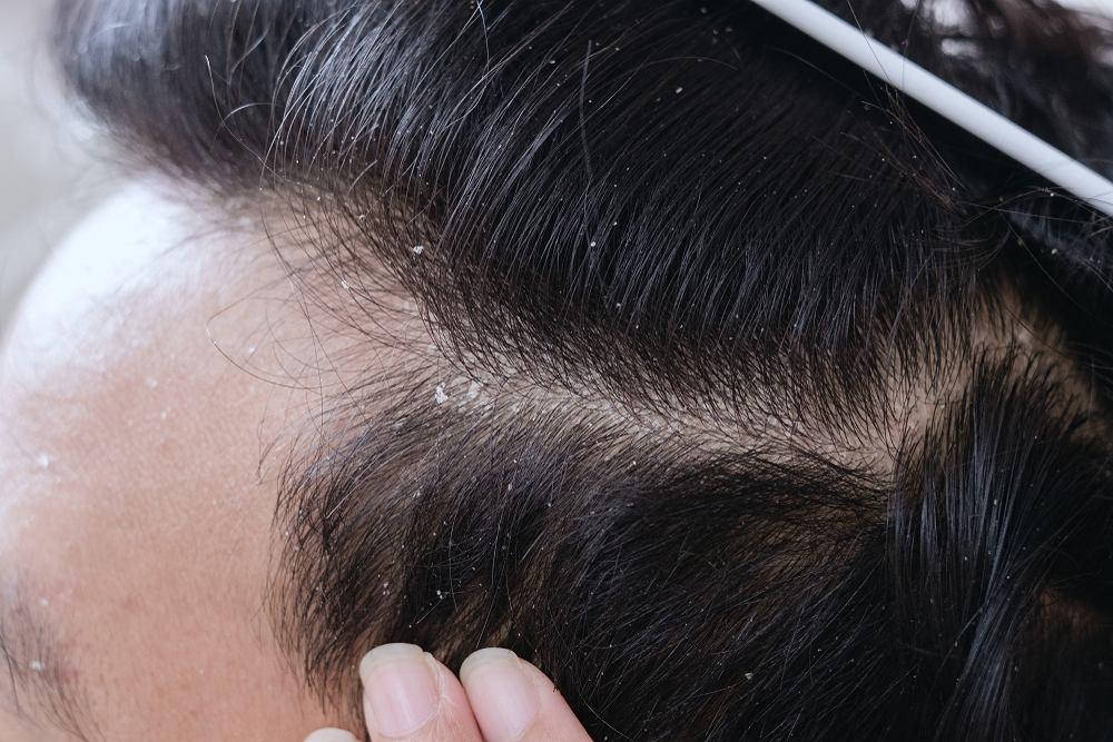 Łupież to nie tylko uciążliwy problem estetyczny. Może się również przyczyniać do wypadania włosów