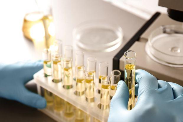 Naukowcy opracowali proste badanie moczu, które ujawnia twój biologiczny wiek, a nawet... kiedy umrzesz