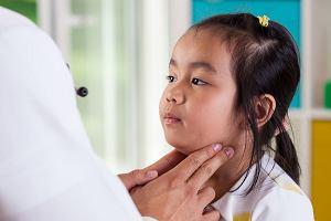 �winka - objawy choroby u dzieci i doros�ych