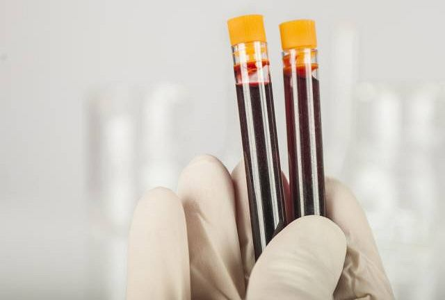 Stężenia PCT, czyli prokalcytoniny jest konieczne m.in. przy diagnozowaniu infekcji