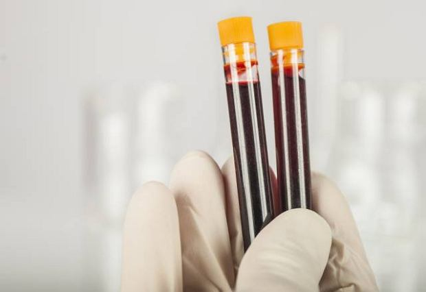 PCT - pomo�e odr�ni� infekcj� bakteryjn� od wirusowej