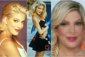 Od 4 pa�dziernika 1990 roku kiedy to wyemitowano pierwszy odcinek Beverly Hills 90210, min�o ponad 25 lat. Nic dziwnego, �e Tori Spelling, jedna z g��wnych aktorek serialowego hitu, zmieni�a si�. Jednak tu nie tylko czas wp�yn�� na jej wygl�d. Przede wszystkim drastyczne i niezbyt udane zmiany zafundowa�a sobie sama. Dzi� w niczym nie przypomina ju� Donny Martin, kt�r� gra�a.