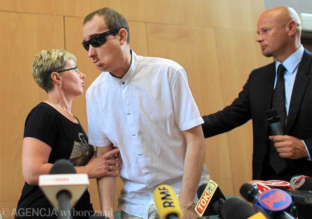 Przeszczep twarzy w Gliwicach uznany za najlepszy zabieg na �wiecie