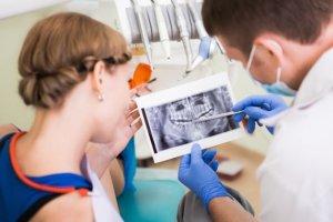 Implanty z�b�w: 8 wa�nych pyta� i odpowiedzi
