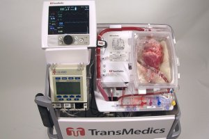 """Pierwszy w Europie przeszczep """"nie�yj�cego"""" serca. Ta technika pozwoli zwi�kszy� liczb� transplantacji nawet o 25 proc."""