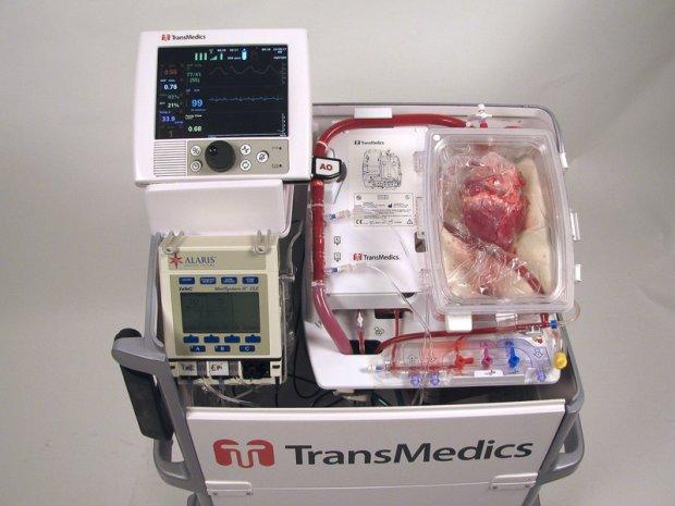 """Pierwszy w Europie przeszczep """"nieżyjącego"""" serca. Ta technika pozwoli zwiększyć liczbę transplantacji nawet o 25 proc."""
