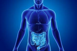 Perforacja jelita cienkiego lub grubego - objawy, diagnoza i leczenie