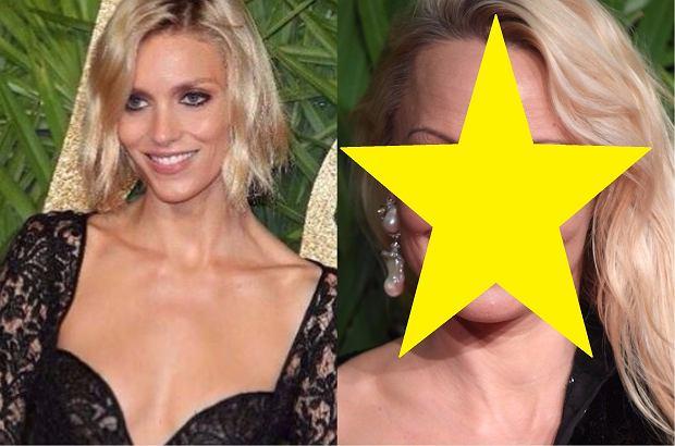 Zdjęcie numer 0 w galerii - Rubik i Przetakiewicz na ściance obok Seleny Gomez. Ale to Pamela Anderson zwróciła naszą szczególną uwagę. Co się stało z jej twarzą?!
