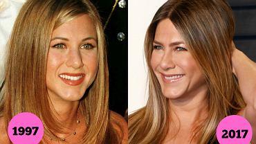 Świetne geny, diety-cud czy pomoc medycyny estetycznej? Nie wiemy, co sprawia, że Jennifer Aniston wciąż wygląda jak niezapomniana Rachel z 'Przyjaciół', a Aneta Kręglicka nadal mogłaby konkurować w wyborach Miss World. Te gwiazdy wyglądają niemal identycznie jak 20 lat temu.