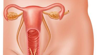 Zapalenie przydatków zazwyczaj poprzedza zapalenie szyjki macicy z obecnością obfitych, żółtych upławów, do których dołączają bóle podbrzusza, wysoka gorączka, wzmożona wrażliwość przy dotykaniu brzucha