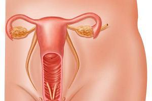 Zapalenie przydatk�w (jajowod�w i jajnik�w) - objawy, diagnoza, leczenie