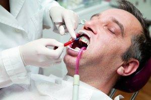 Wybielanie zębów: wszystko, co musisz wiedzieć