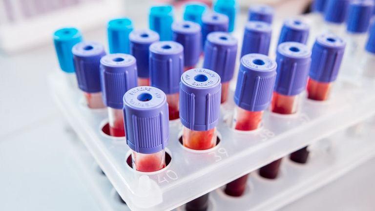 Leukocytoza nie zawsze świadczy o groźnym zaburzeniu lub poważnym problemie zdrowotnym