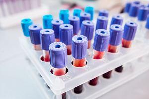 Gdy leukocytów jest za dużo - leukocytoza. Poziom leukocytów we krwi