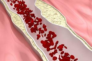 Choroby tętnic trzewnych