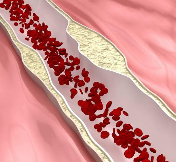 Choroby t�tnic trzewnych