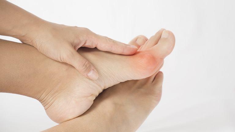 Tam, gdzie pojawiają się otarcia, częste są też pęcherze, np. na stopach