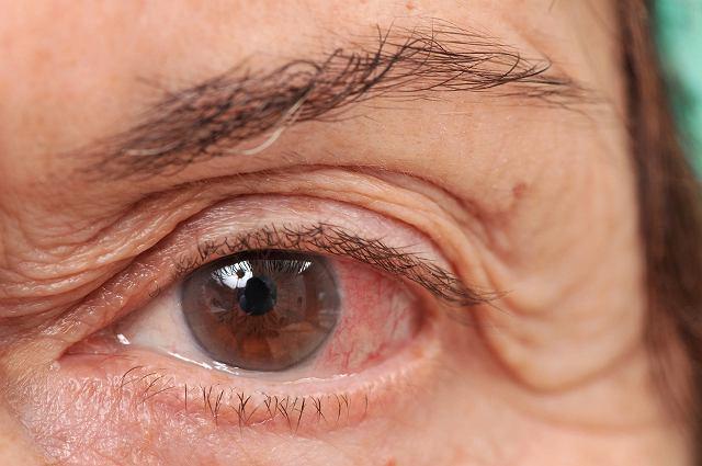 Jaglica to przewlekłe zapalenie spojówek wywoływane przez bakterie chlamydia trachomatis