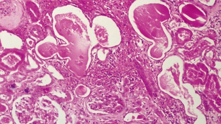 Przewlekła niewydolność nerek. Mikrofotografia tkanki nerkowej ukazuje obraz histologiczny przewlekłego odmiedniczkowego zapalenia nerek. Kanaliki nerkowe są powiększone; widoczna obecność materiału białkowego i leukocytów