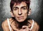 Anoreksja po pięćdziesiątce. Jestem za stara, żeby mnie leczyć