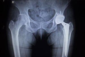 Ryzyko osteoporozy mo�na zmniejszy�, skacz�c dwie minuty dziennie