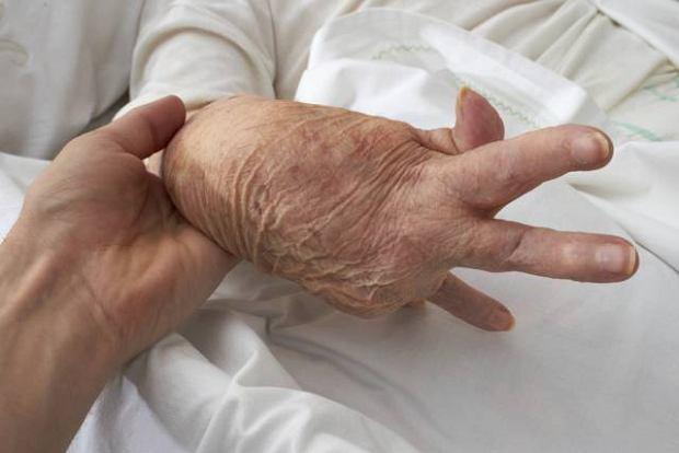 Reumatoidalne zapalenie staw�w jest chorob� autoimmunologiczn�, a przyczyny jej wyst�powania nie s� znane