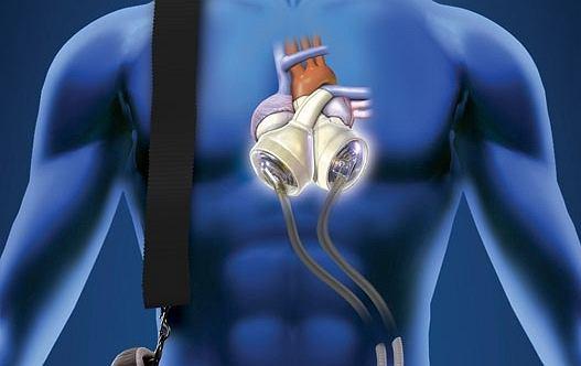 Sztuczne serce firmy SynCardia