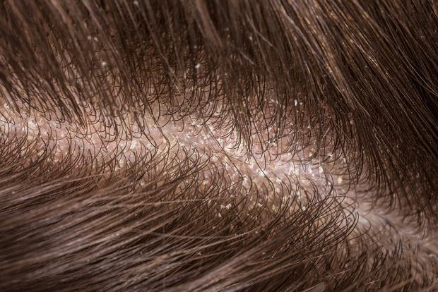 Objawem łupieżu suchego są drobne, białe płatki złuszczonej skóry, pojawiające się na włosach (i osypujące na ubranie)