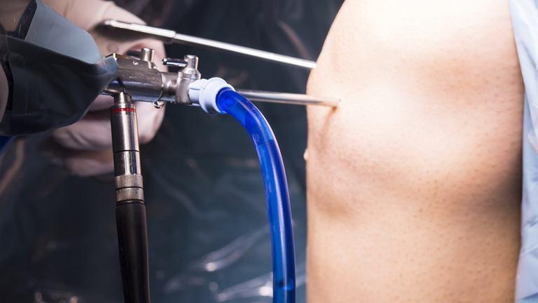 Artroskopia, czyli wziernikowanie stawu kolanowego to badanie, które pozwala dokładnie obejrzeć staw i ocenić charakter zmian, które w nim zachodzą