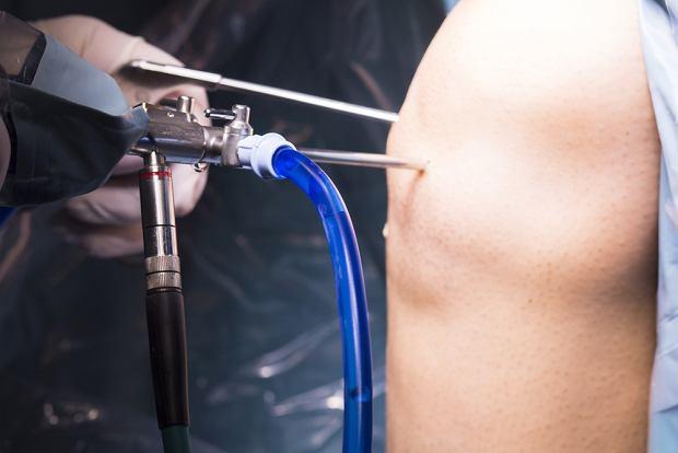 Artroskopia - co to za badanie i na czym polega?