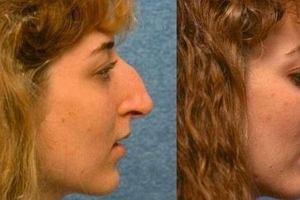 Wystarczyła zmiana kształtu nosa, żeby cała twarz wyglądała o niebo lepiej. Ta metamorfoza robi wrażenie!
