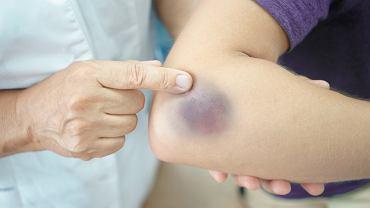 Skaza krwotoczna może objawiać się zwiększoną skłonnością do pojawiania się siniaków i wybroczyn na skórze