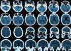 Wystarczy zablokować jeden z receptorów w mózgu myszy, aby wyleczyć ją z alzheimera. Przełom w leczeniu tej choroby?