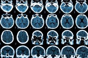 Wystarczy zablokowa� jeden z receptor�w w m�zgu myszy, aby wyleczy� j� z alzheimera. Prze�om w leczeniu tej choroby?