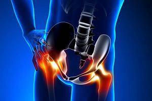 Spondyloartropatie
