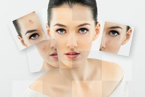 Kosmetyki przeciw alergii