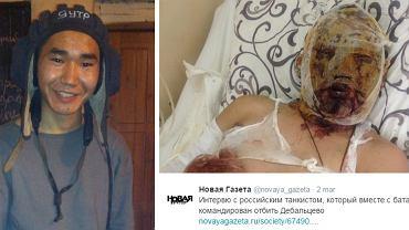 Dorży, rosyjski żołnierz ranny na Ukrainie