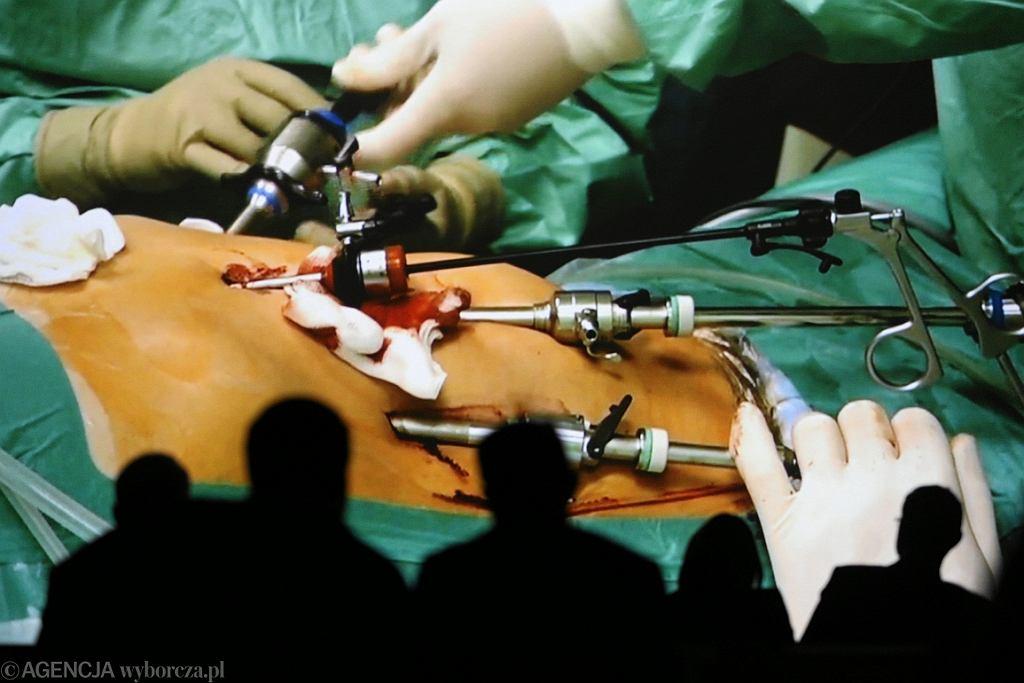 Lekarze podczas operacji mają styczność z krwią pacjentów (fot. Jakub Orzechowski/AG)