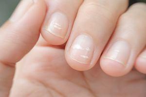 Białe paznokcie, przebarwienia - co mogą oznaczać?