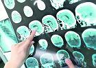 Polskie badania: pasożyty leczą stwardnienie rozsiane