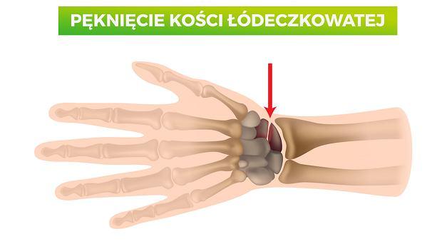 Kość łódeczkowata - jak dochodzi do złamania tej kości i jak wygląda leczenie?