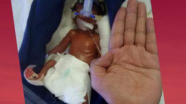 To jeden z najmniejszych uratowanych wcześniaków w historii medycyny.