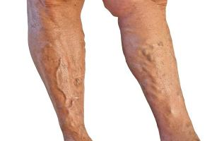 Żylaki nóg