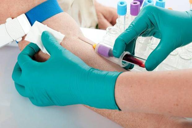 MORFOLOGIA: Bazofile (granulocyty zasadoch�onne)
