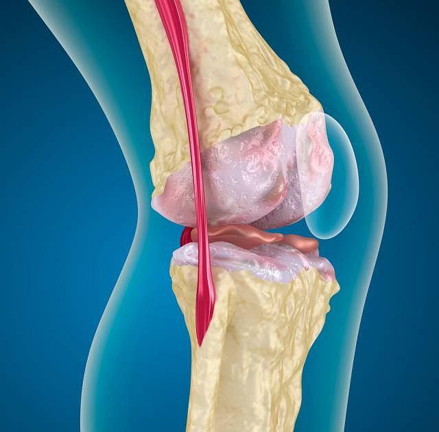 Łąkotka umożliwia m.in. wykonywanie ruchów obrotowych przy zgiętym kolanie