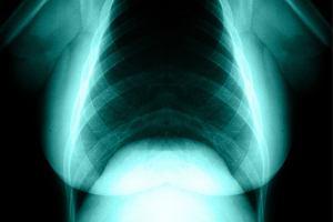 Aż dwie trzecie chorych na raka piersi może uniknąć toksycznej chemioterapii. Przełomowe badania