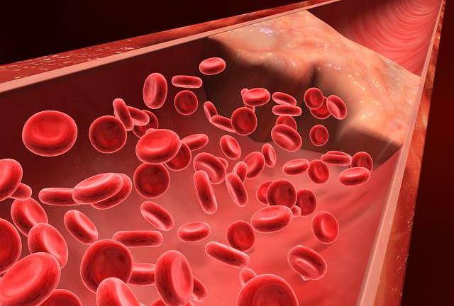 Guzkowe zapalenie tętnic to choroba autoimmunologiczna mogąca zaatakować zarówno małe, jak i duże naczynia krwionośne