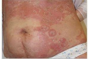 Łuszczyca: choroba, która zamyka w domu