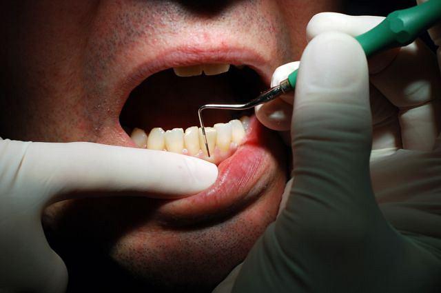 Zdrowe dziąsła są różowe i dokładnie przylegają do zębów